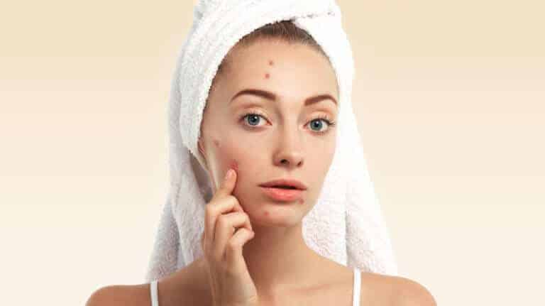 ¿Cómo afecta el acné a la sexualidad?
